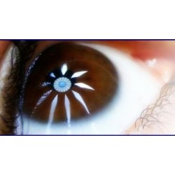 Urgencias Oftalmológicas para Ópticos-Optometristas (Curso on-line)
